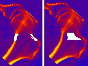 NASA scientists are also studying how bisphosphonates affect the density of hip bones, pictured here.
