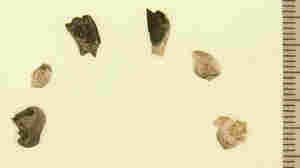 Teeth from a cremated child were excavated from a site believed to be 11,500 years old. The color differences show uneven burning. The scale is in millimeters.