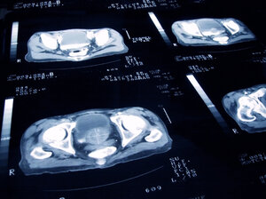 An enlarged cancerous prostate is shown on a tomography scan.
