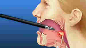 How To Beat Sleep Apnea? Cut It Out (Surgically)