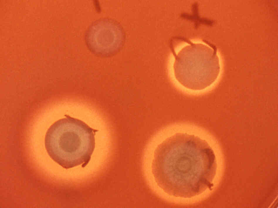 Colonies of Serratia marcescens dot an agar plate.