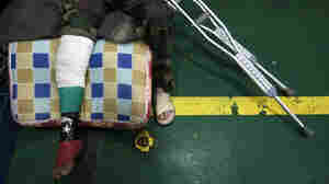 An injured man with a leg cast in the colors of the Libyan rebel flag sits on the deck of a Turkish ship arriving from Misurata to the port of Benghazi to evacuate the wounded on Sunday.