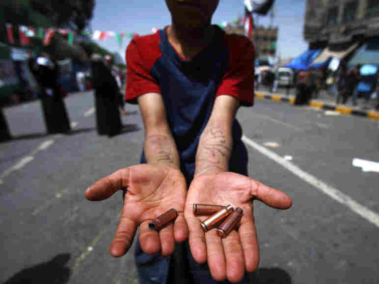 An anti-government protester displays bullet shells during clashes in Sanaa,Yemen, on Tuesday.