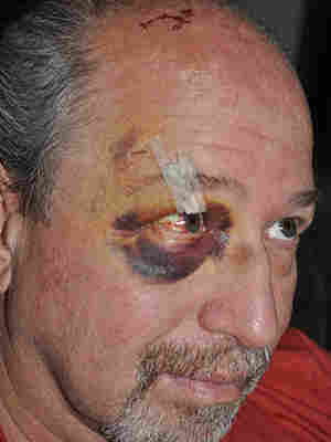 Dr. Richard Frishman, a psychiatrist at Napa State Hospital, photographed after he was attacked by a patient.