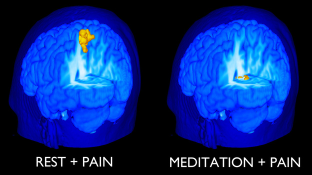 Signs of pain disappeared from MRI images of the brain when freshly trained novices meditated.