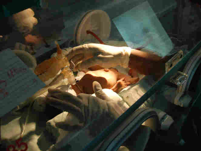 A premature newborn at a hospital in Havana, Cuba.