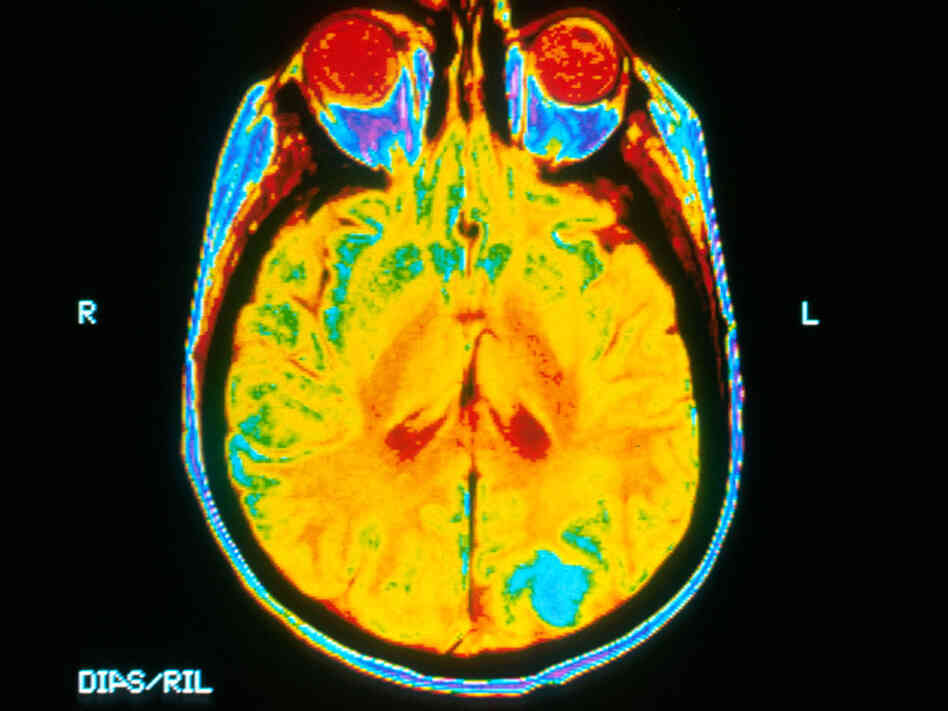 Brain MRI with Cancerous Tumor
