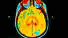 Brain MRI with Cancerous Tumor
