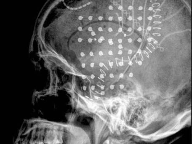 The X-ray image on the left shows a grid of electrodes placed directly on the surface of a patient's brain. Each red dot on the right corresponds to an individual electrode, and the size of the dot represents the intensity of the signal being detected. Researchers can analyze the data to decode brain signals.