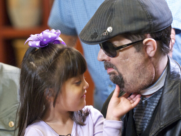 Scarlette Wiens touches the chin of her father, face-transplant recipient Dallas Wiens.