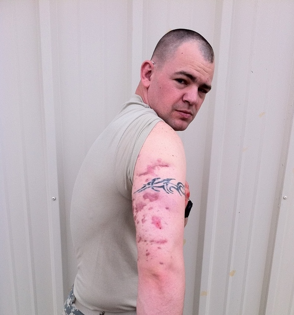 Staff Sgt. Nicholas Smith says he still finds shrapnel in his skin. He suffered a traumatic brain injury in Afghanistan last September but hopes to return to duty.