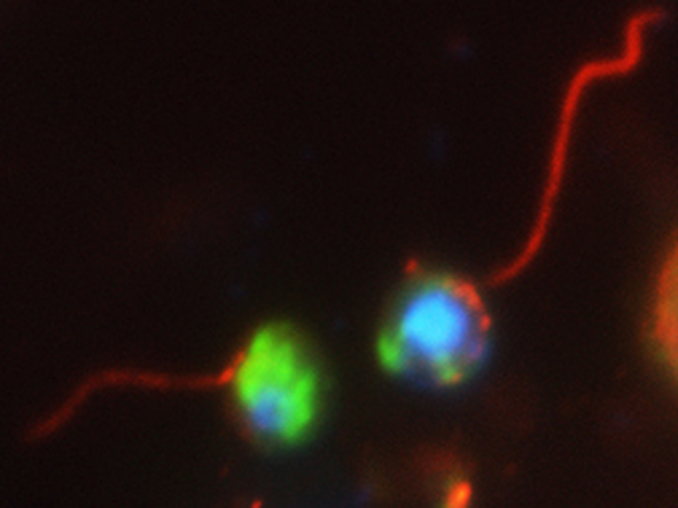 "Two cells — one marked mostly in green, the other in blue — of a newly discovered organism found in water samples collected from the University of Exeter pond. Scientists think these ""cryptomycota"" use their tails to propel themselves while searching for food."
