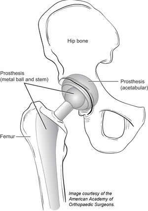 A diagram of a total hip replacement.