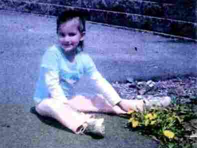 This undated photo shows Lexi before she was adopted. She had an anxiety disorder where she would pull her hair out by the roots.