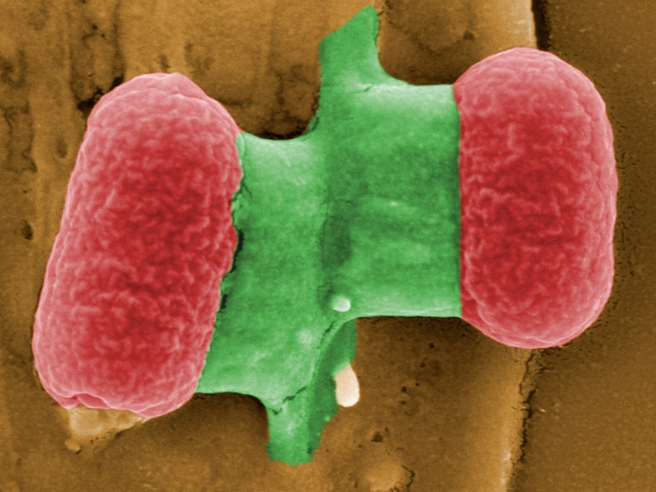 A couple of <em>E. Coli</em> bacteria captured in an image from the Helmholtz Center for Research on Infectious Diseases in Berlin earlier this week.