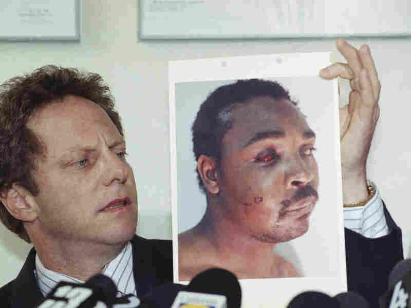 In 1991, Steven Lerman, an attorney for Rodney King, displays a photo of his client during a press conference in Beverly Hills. King was beaten by Los Angeles police officers who were later acquitted, sparking riots across the city.
