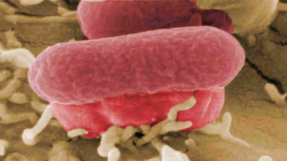 A closeup view of the bacterium behind the foodborne disease outbreak centered in Germany.