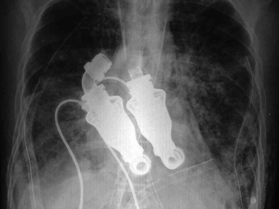 An X-ray shows the dual turbinelike blood pumps that replaced Craig Lewis' heart. These devices were used in a last attempt to save his life.