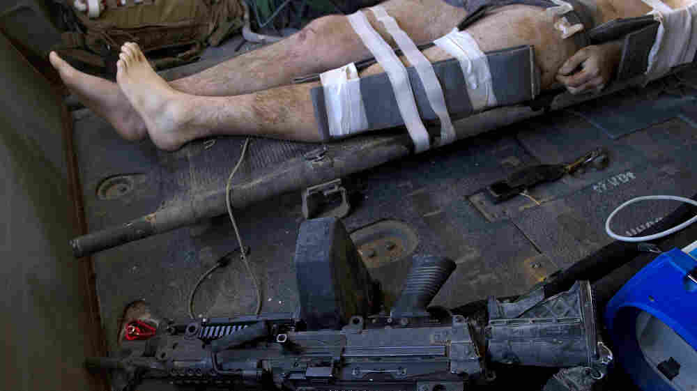 A NATO soldier wounded by an IED explosion lies in a helicopter during an emergency airlift in Kandahar province, southern Afghanistan on October 12, 2010.  Bombs, not bullets, are the main threat to soldiers in Iraq and Afghanistan. (Getty Images)