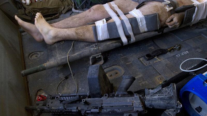 Prisoner of war sperm damage