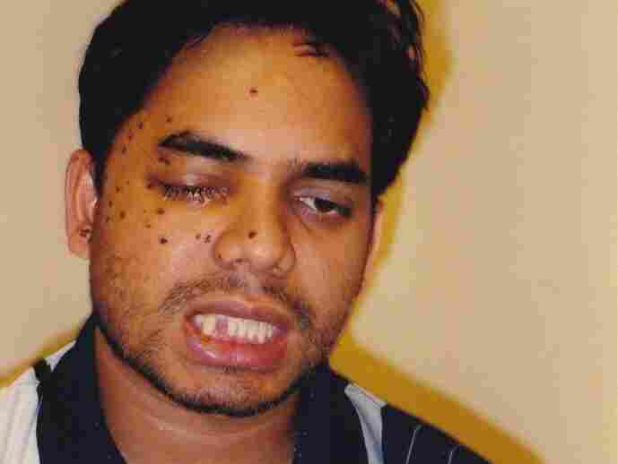 Rais Bhuiyan after he was shot in the face on Sept. 21, 2001.