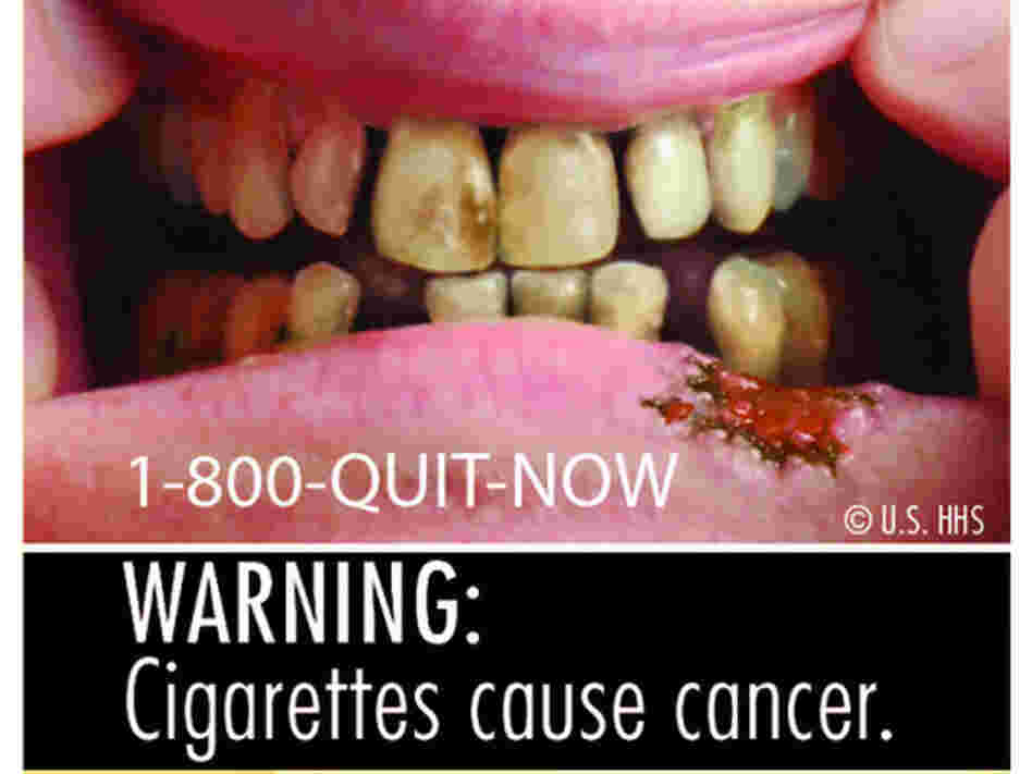 One of the nine new warning labels that will be featured on cigarette packs next year.