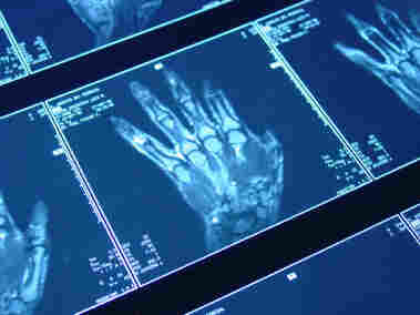 MRI scan of a hand