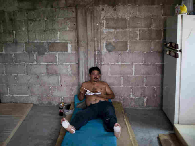 Jose Zunia of Honduras eats in a migrant shelter in Tenosique in Mexico. He injured his feet hiking through the Guatemalan jungle to avoid the Mexican migration authorities.  Once he's healed, he plans to head for Mexico's northern border with the U.S.