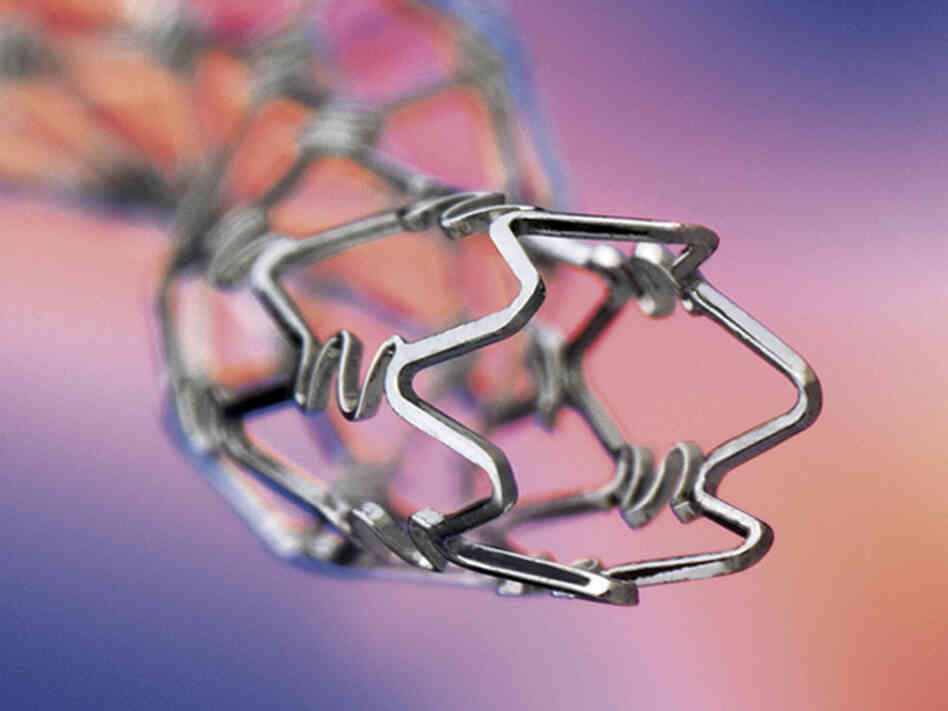 A closeup of a Johnson & Johnson Cypher stent. The company, the first to market such devices, said last month it will get out of the stent business.