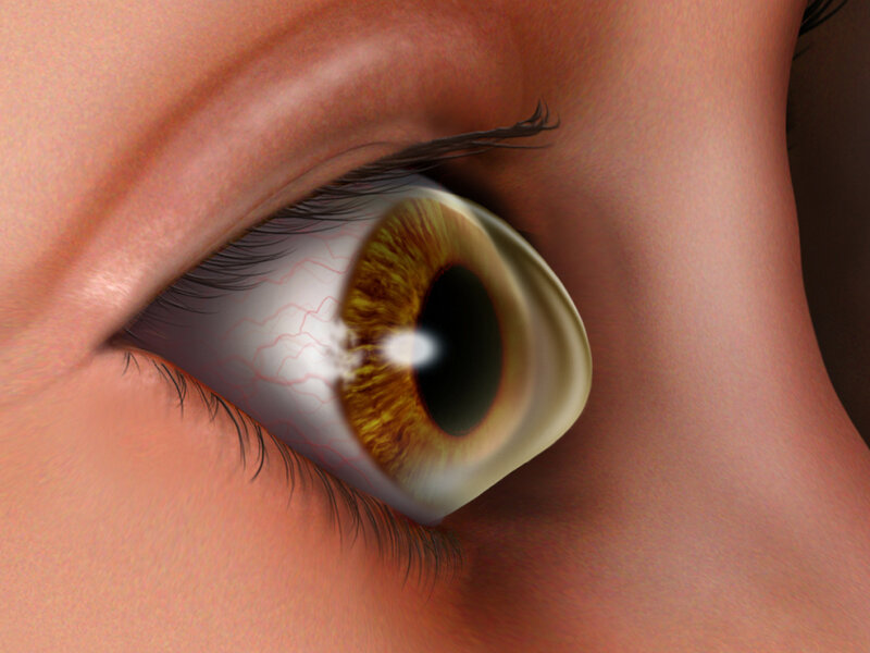 An Affliction Of The Cornea Gets A Closer Look : NPR