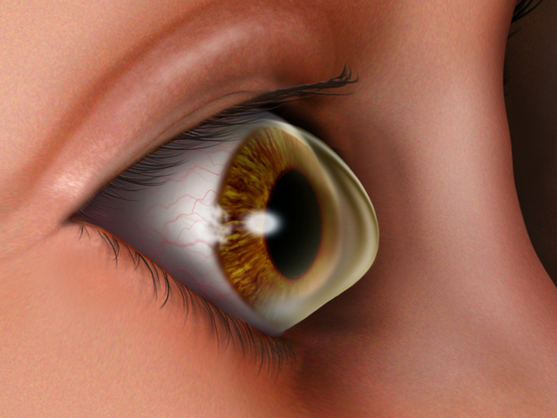 Keratoconus is an  eye condition in which the normally round cornea thins, causing a cone-like bulge to develop.