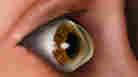 An Affliction Of The Cornea Gets A Closer Look