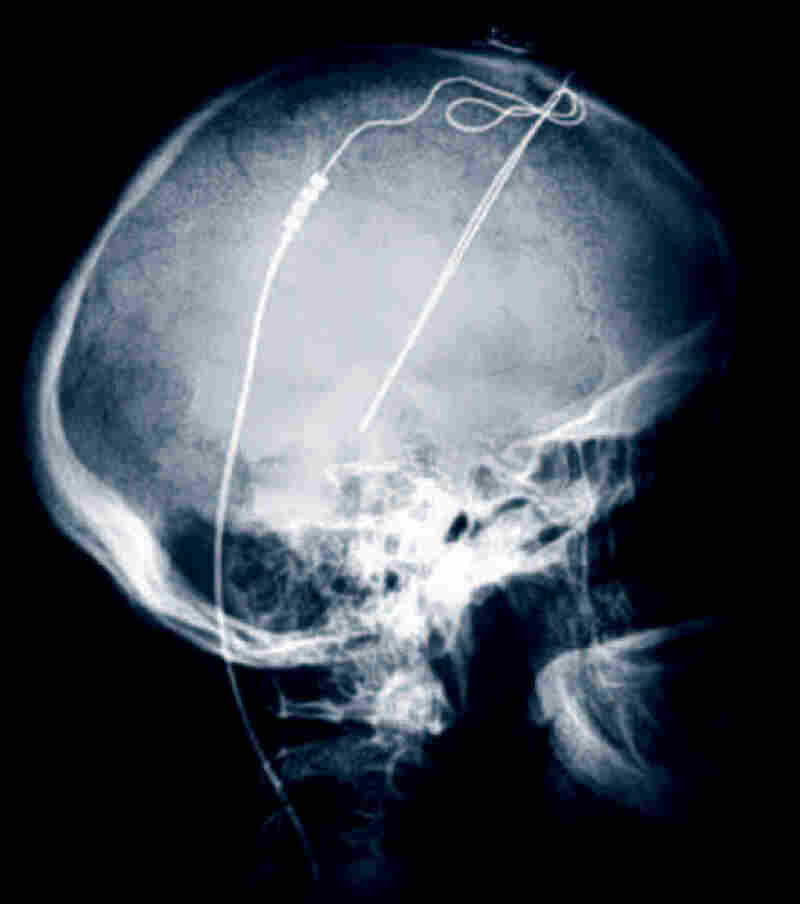 This undated X-ray image from the Cleveland Clinic shows electrodes implanted in a patient's brain. The method, known as deep brain stimulation, has traditionally been used to treat diseases such as Parkinson's, but new research indicates it could be helpful for patients with obsessive-compulsive disorder.