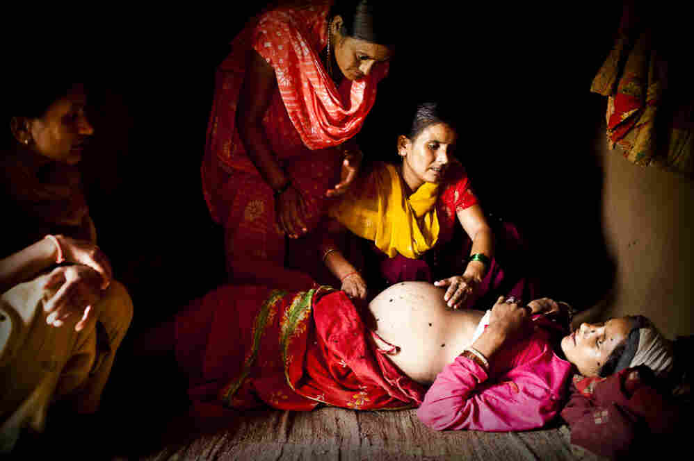 An aid worker examines Maheshwori and determines that her unborn baby is in a breech position. Because of the dangers associated with such a delivery, the aid worker makes a case to the village elders that a skilled birth attendant should be brought in to assist with the birth, rather than relying on an untrained traditional birth attendant.