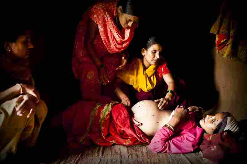 An aid worker examines Maheshwori and determines that her unborn baby is also in a breech position. Because of the dangers associated with such a delivery, the aid worker makes a case to the village elders that a skilled birth attendant should be brought in to assist with the birth, rather than relying on an untrained traditional birth attendant.