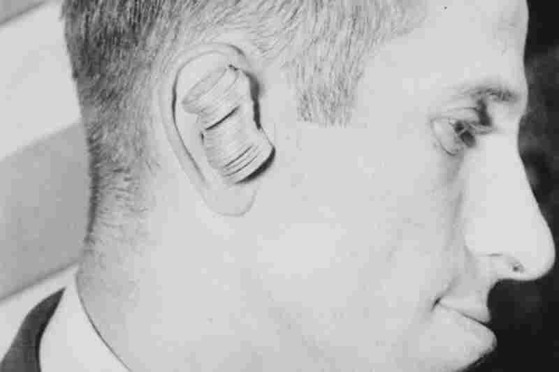Max Calvin of Brooklyn could hold 25 quarters in his ear, 1933.