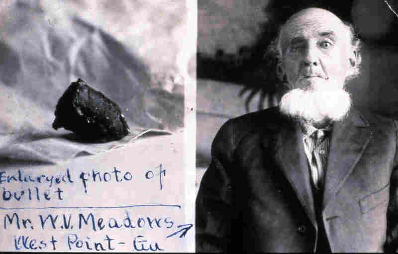 W. V. Meadows of West Point, Ga., was shot in the eye at the battle of Vicksburg and unexpectedly coughed up the Civil War bullet 58 years later.