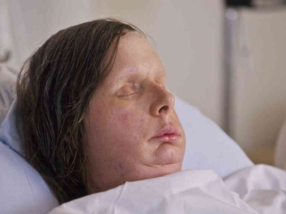 Charla Nash received a full face transplant after she was mauled by a chimpanzee in 2009. The procedure was performed last month by a team of plastic and orthopedic surgeons at Brigham and Women's Hospital in Boston.