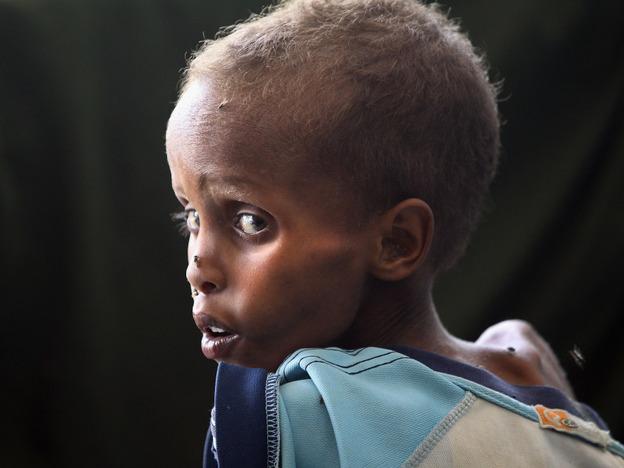 A malnourished child awaits medical attention at the Banadir hospital in Mogadishu, Somalia.