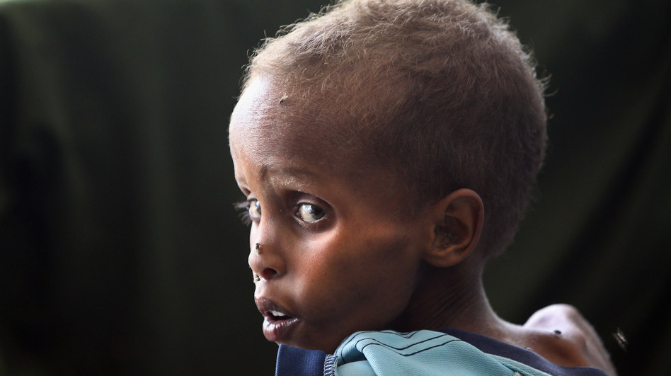 A malnourished child awaits medical attention at the Banadir hospital in Mogadishu, Somalia.