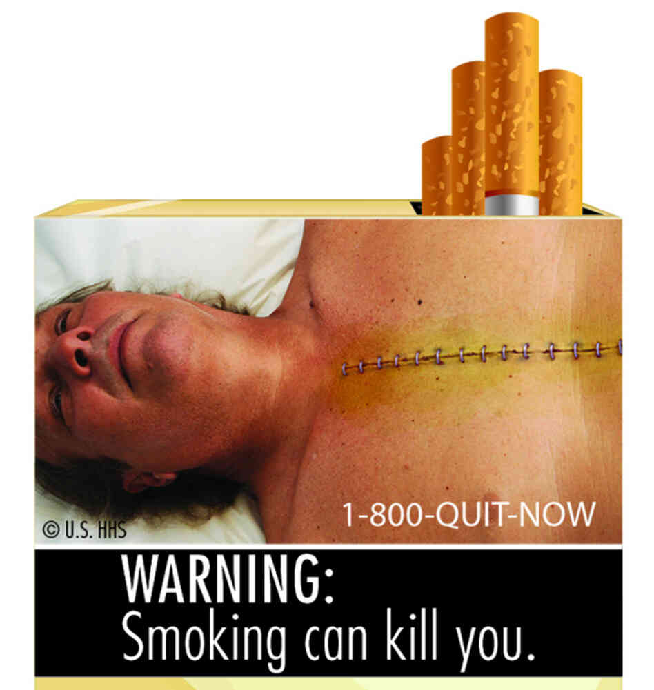 Another of the startling images that will soon be appearing on cigarette packages.