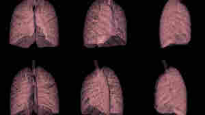 Experts Question Bargain CT Scans For Smokers