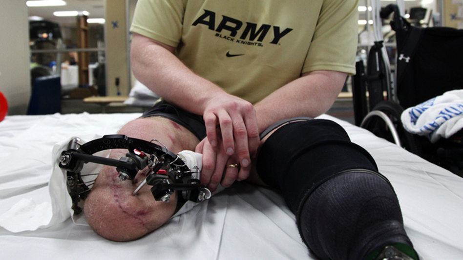 "Tyson Quink smiles while examining his knee. ""Doesn't it look like a catfish?"" he said. Quink is waiting for a bad burn to heal before he can be fitted for his second prosthetic. (NPR)"