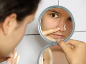 Nearly all teenagers get acne at some point, usually after puberty switches their oil glands in