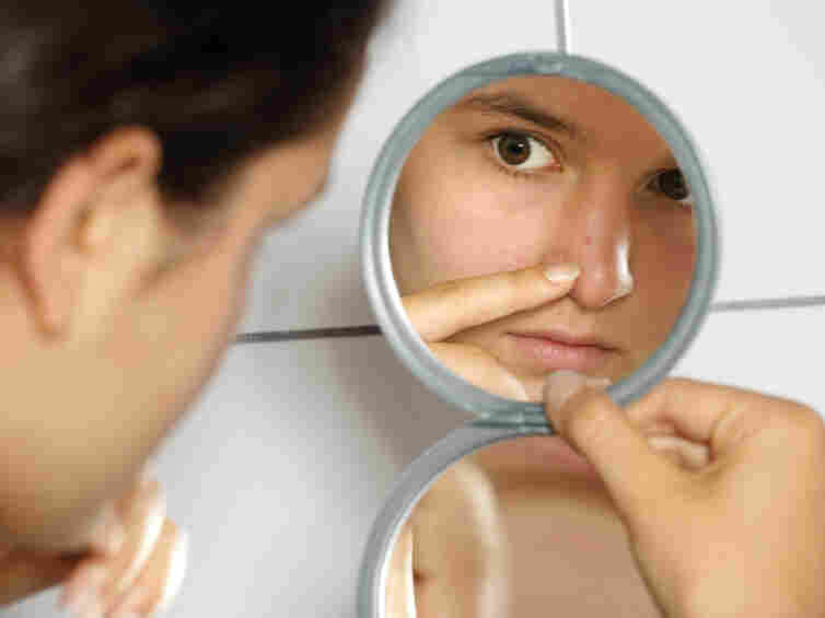 Nearly all teenagers get acne at some point, usually after puberty switches their oil glands into high gear.