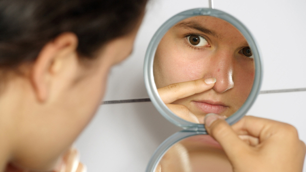 Nearly all teenagers get acne at some point, usually after puberty switches their oil glands into high gear. (iStockphoto.com)