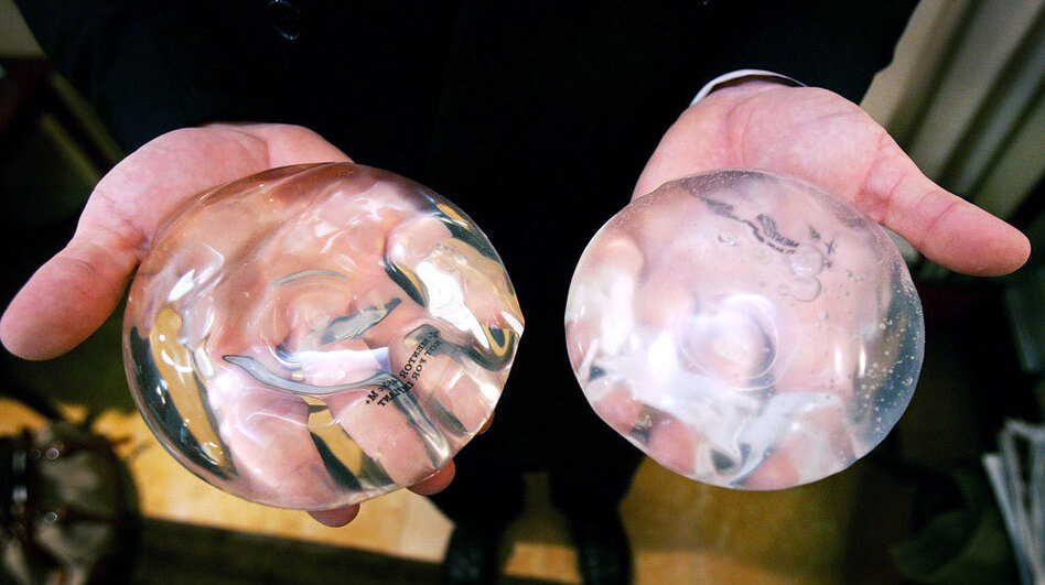 E Breast Implants Efforts Founder To Tra...