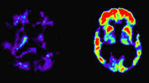 PET scans of the brains of a person with normal memory ability and someone diagnosed with Alzheimer's