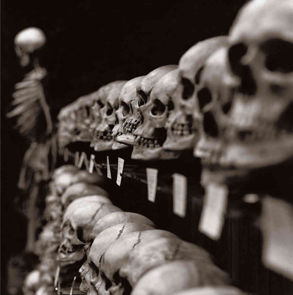 The Hyrtl Skull Collection is one of the centerpieces of the Mutter Museum in Philadelphia. Most of the 139 skulls have an ink inscription on the front or side giving the place of birth, name, age, religion, occupation and cause of death. Most of the individuals are from Central or Eastern Europe (though there are some individuals from as far away as Egypt and Japan), and ages range from 8 to 8...