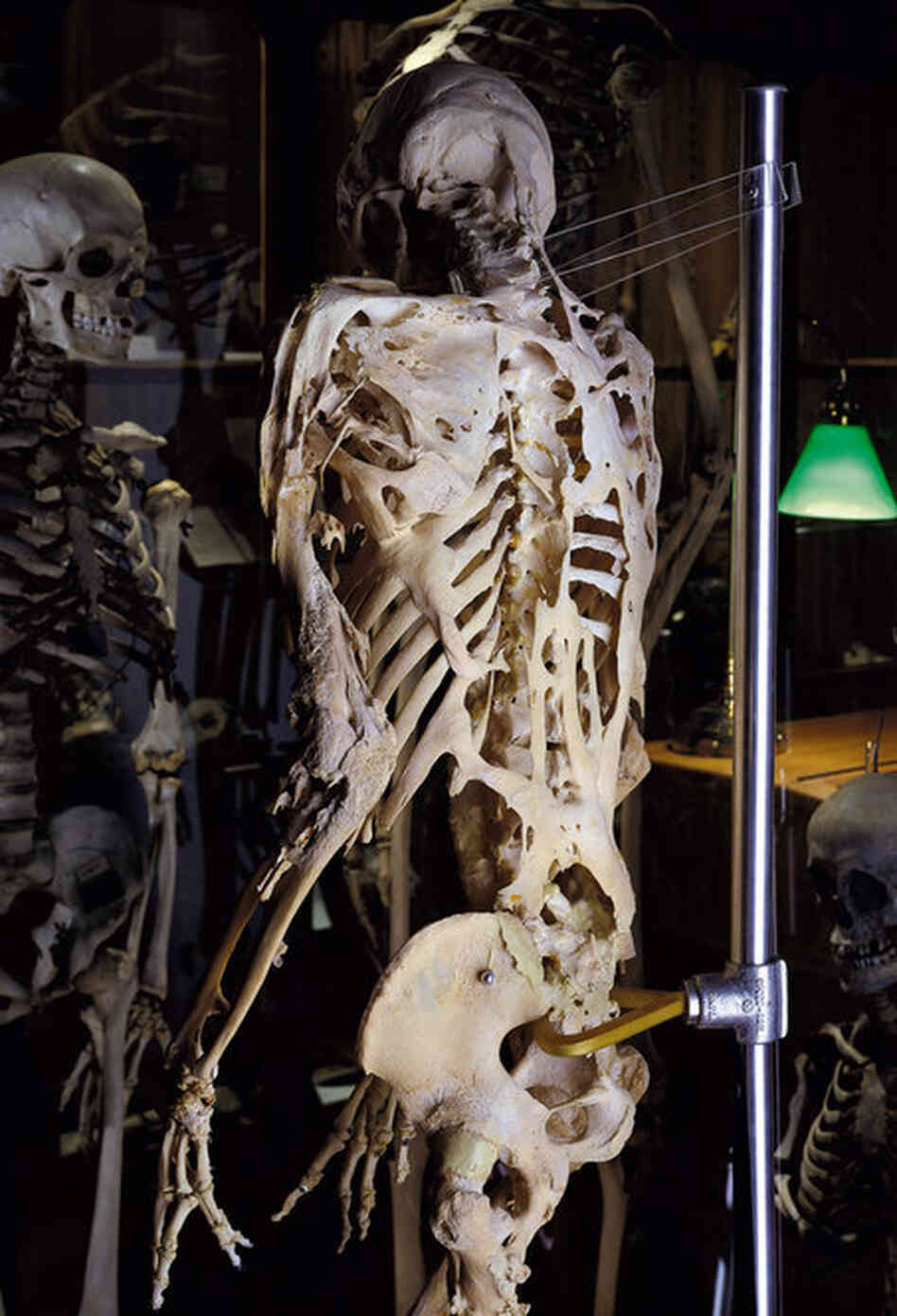 The skeleton of Harry Raymond Eastlack, a 39-year-old male with fibrodysplasia ossificans progressiva, or FOP — an extremely rare inherited disorder in which bone forms outside the skeleton, immobilizing the individual. Harry, Scott Lindgren, 1990